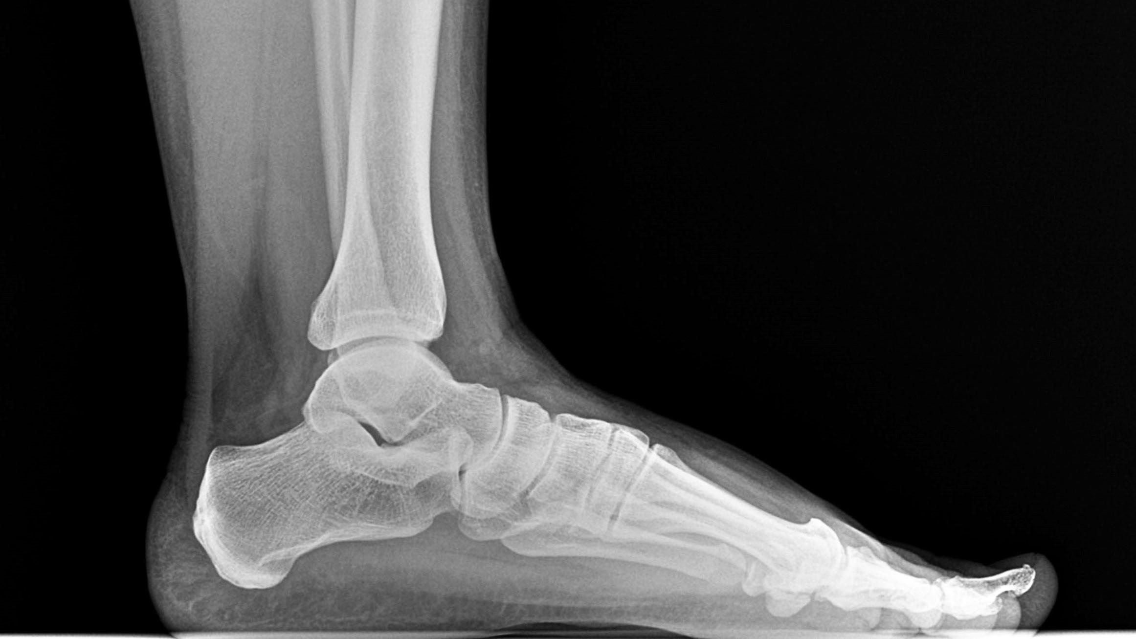 Washburn Foot & Ankle Center image 6