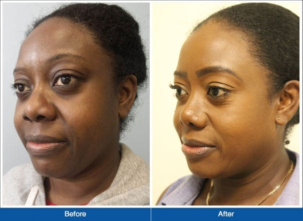 New York Group For Plastic Surgery image 0