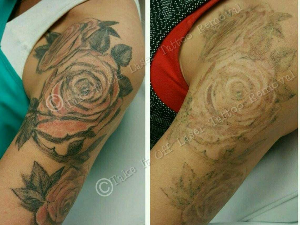 Take It Off Laser Tattoo Removal Louisville KY 13808 Lake Point Way ...