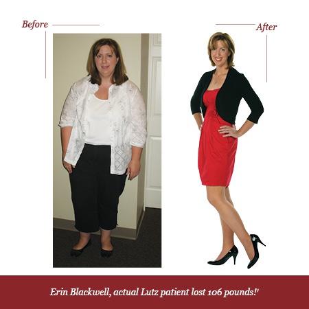 Medi weight loss first week diet