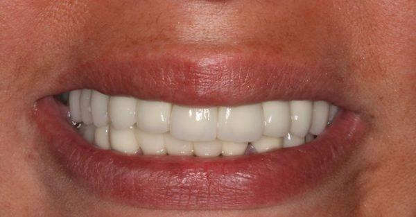 DeJesus Dental Group image 5