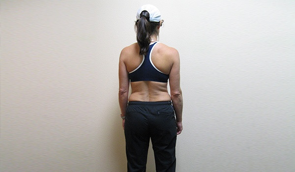 Alderdice Sports and Family Chiropractic and Weight Loss Center image 8