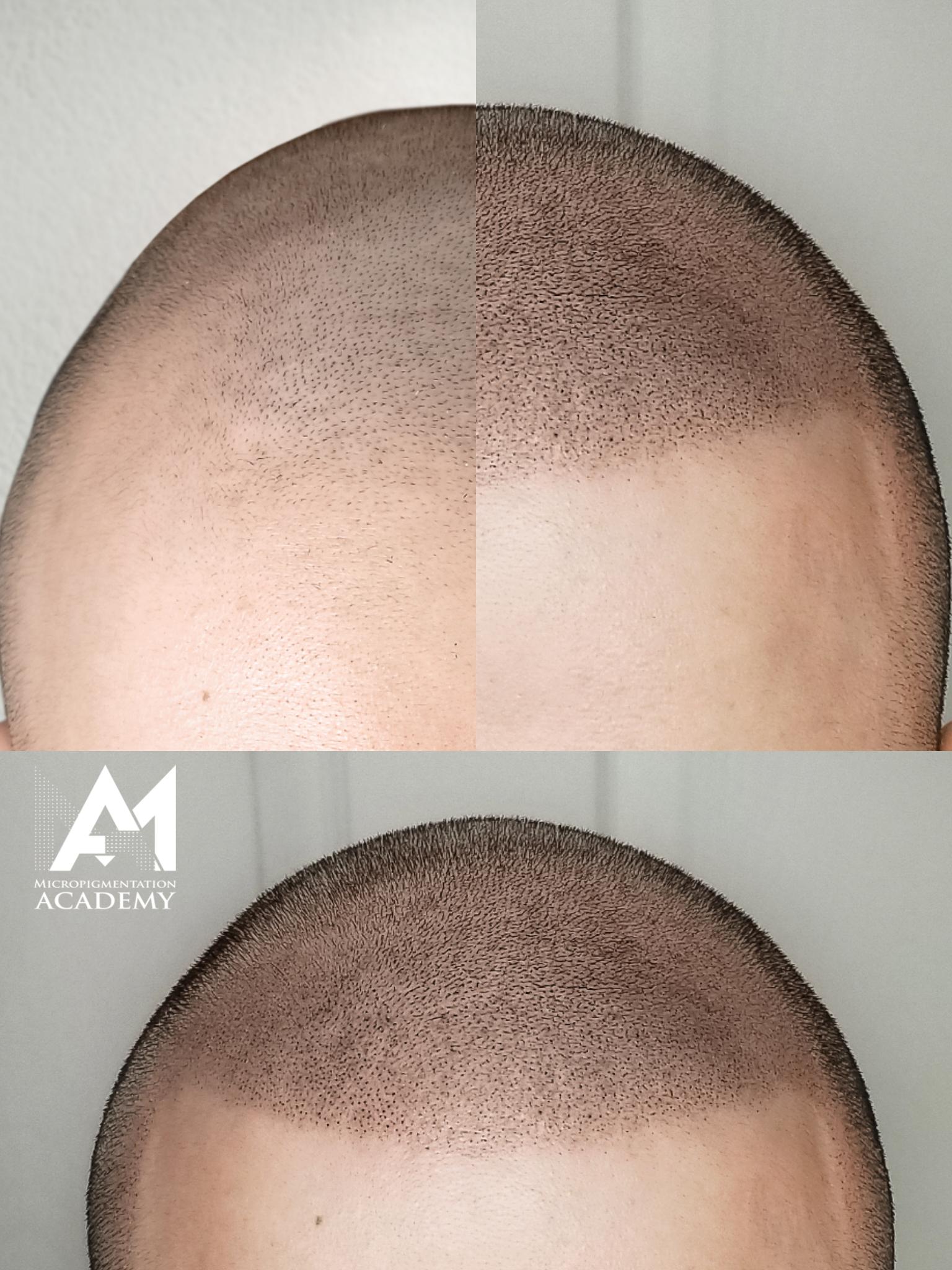 Micropigmentation Academy (Microblading- Scalp Tattoo Treatment/Training) Connecticut image 2