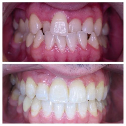 Zarabi Orthodontics image 4