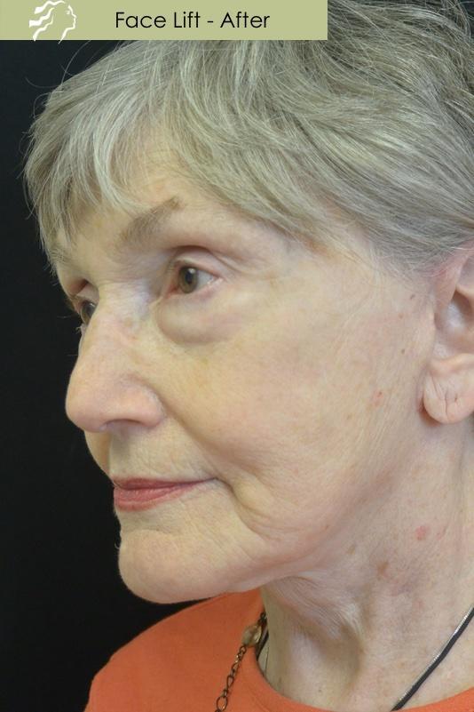 JQ Plastic Surgery image 4