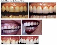 Image 5 | Dr. Anthony Mobasser - Celebrity Dentist