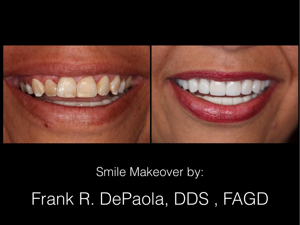 Frank R. DePaola, D.D.S.& Assoc, LLC image 21