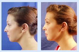 Florida Ear Nose Throat & Facial Plastic Surgery Center image 3
