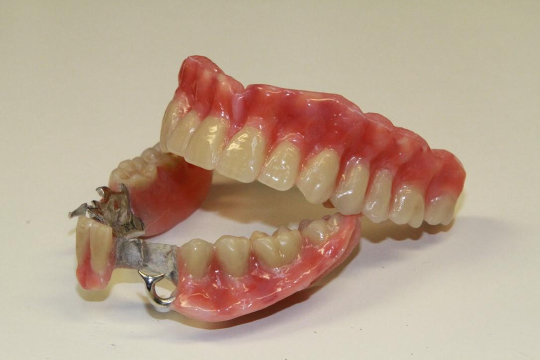 Centre Denturologie Prothèses sur Implants Richard Émond à Montréal
