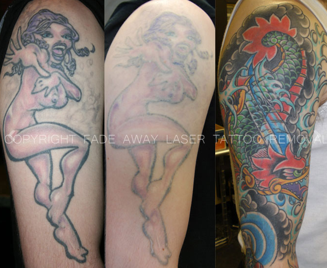 Benchmark Tattoo & Fade Away Laser Tattoo Removal image 7