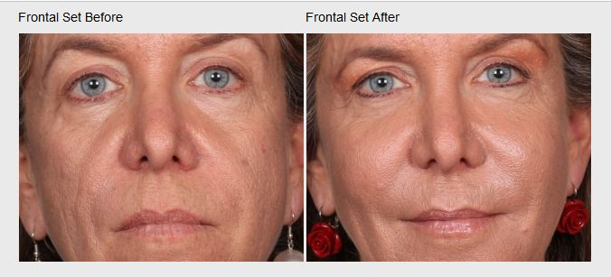 Skin Care and Laser Physicians of Beverly Hills image 13