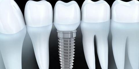 Alderdice Oral Surgery and Dental Implant Specialists image 0