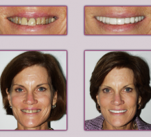 Lehigh Valley Smile Designs - Michael A. Petrillo DMD, PC image 7