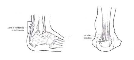 Marion Foot Doctors - Find Plantar Fasciitis Treatment & Bunion