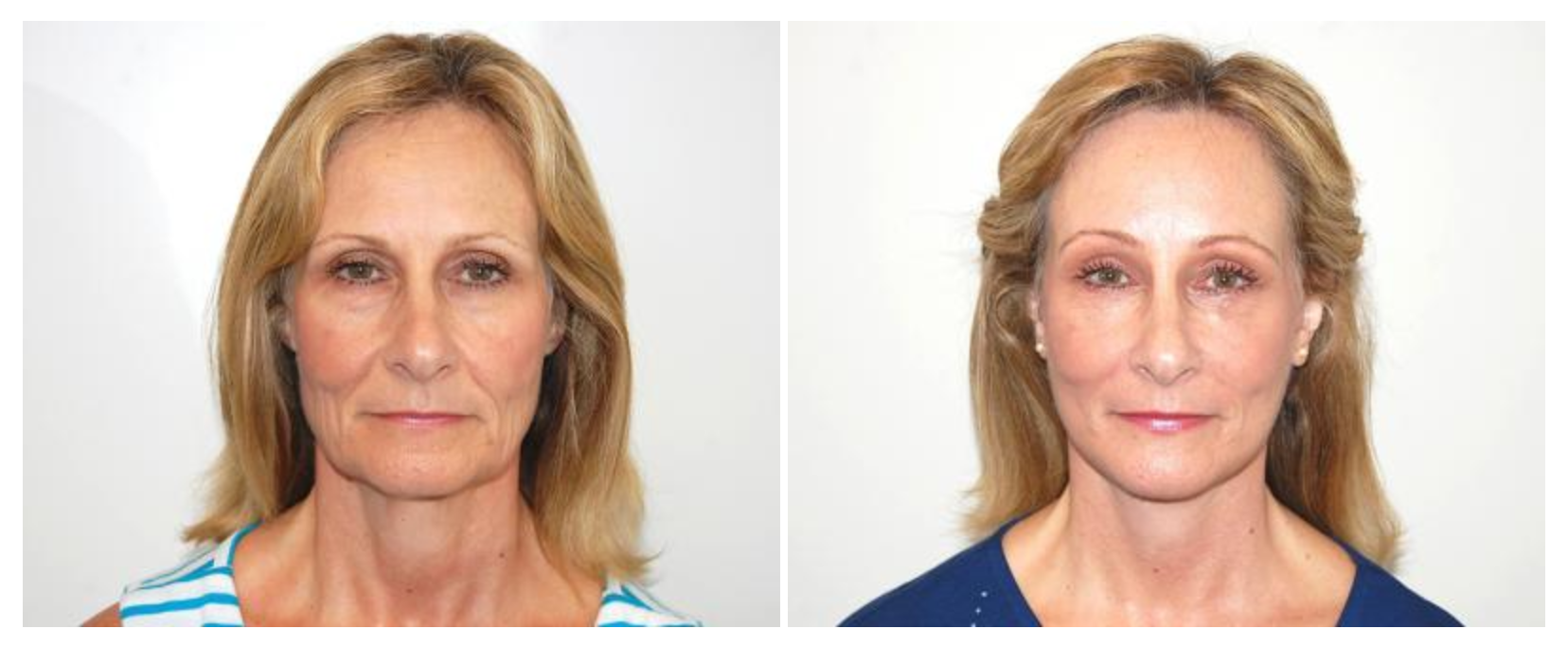 Renaissance Plastic Surgery - Richard H. Lee, MD image 2