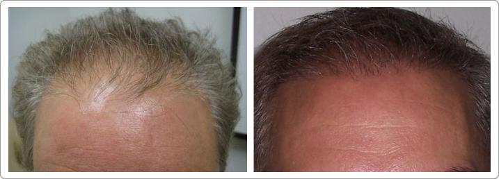 Hair Transplant Center NYC image 1