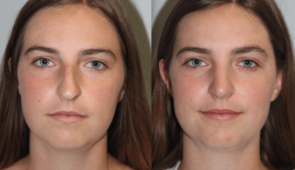 Daines Plastic Surgery image 3