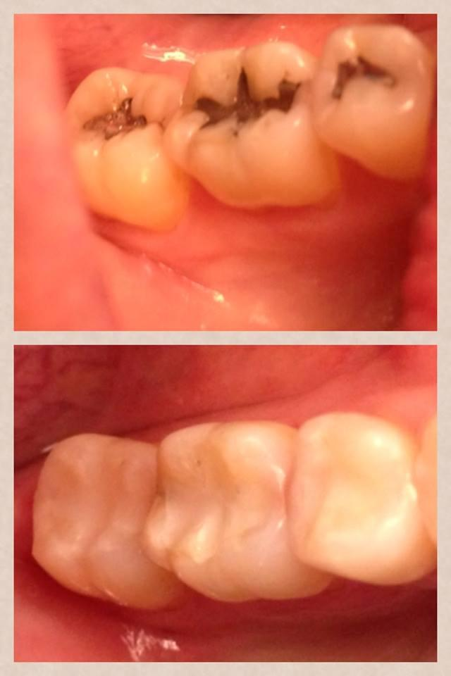Here Dr.  Mohrman has removed old, leaking silver filings and replaced them with new white Composite fillings.