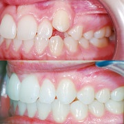 Fulks Orthodontics image 1