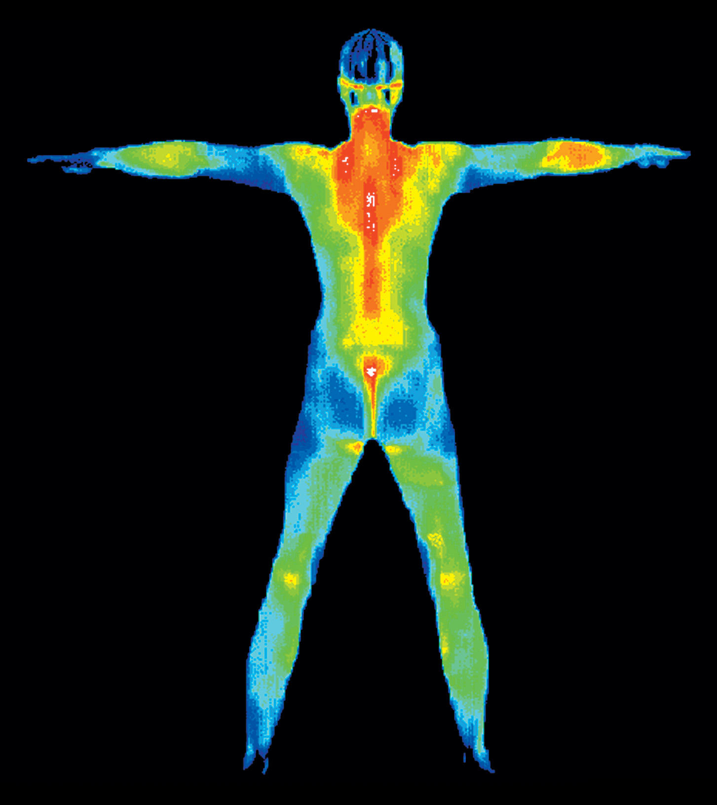CT Thermography image 5