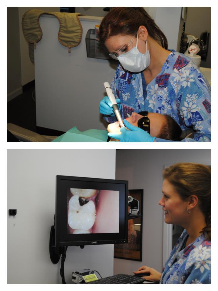Our state of the art Intra Oral Camera allows patients to see what we see.