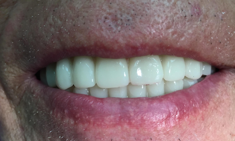 Wellness Dental Center - Thousand Oaks, CA