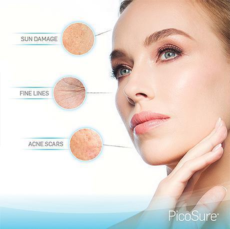 VM Cosmetic Surgery  SculpSure/Ultherapy/PicoSure/Botox 洛杉磯微整形美容▶︎ 吸脂▶︎ 提拉▶︎ 除皱祛斑▶︎ 局部美塑▶︎ 紧致肌肤▶重塑轮廓