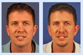 Florida Ear Nose Throat & Facial Plastic Surgery Center image 0