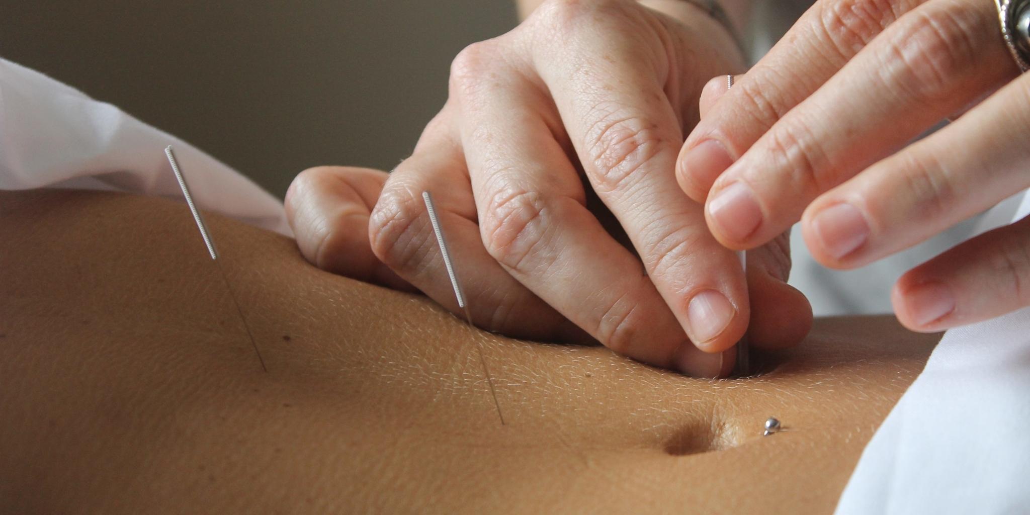 Isabelle Tardif Acupuncture