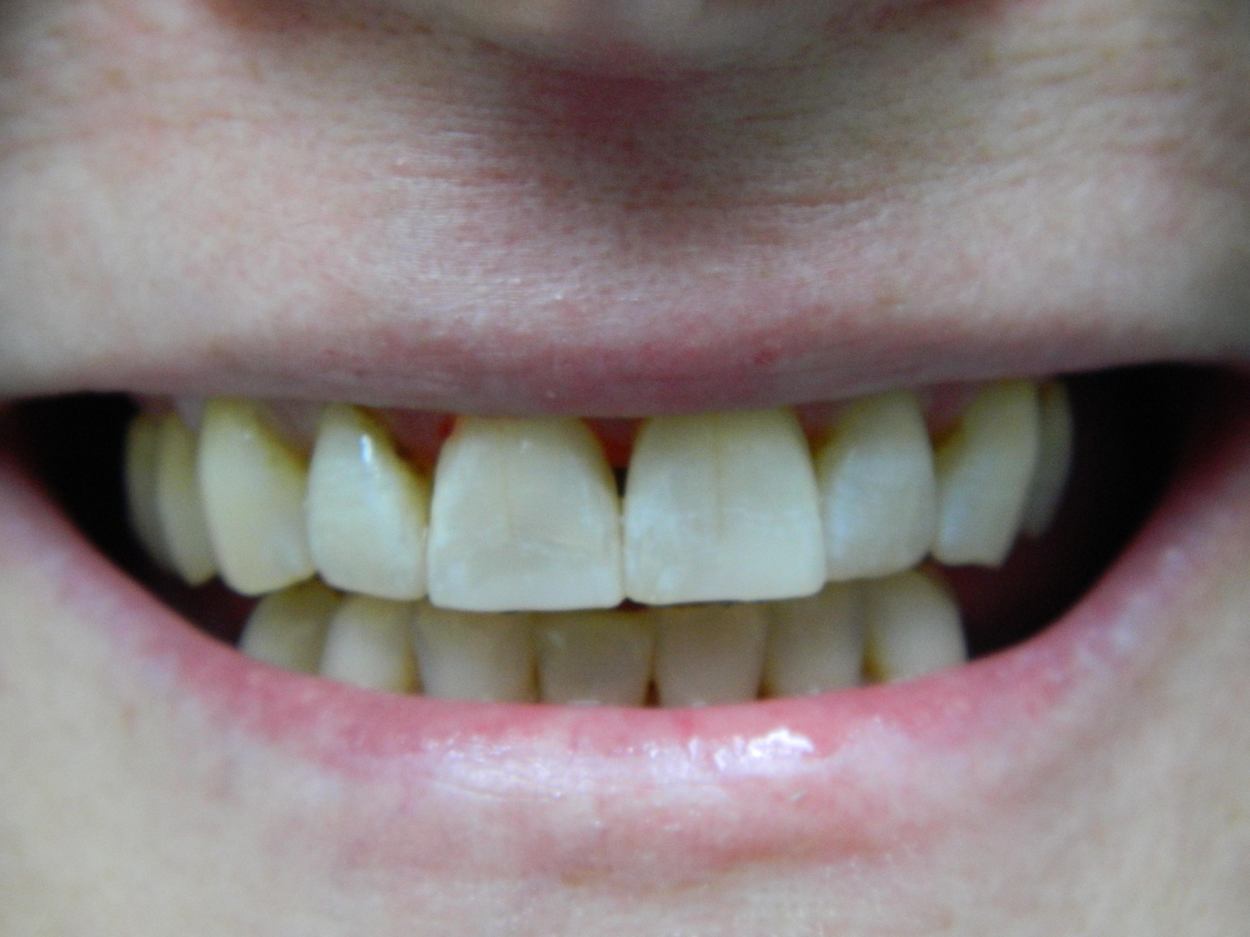 SMILE DENTAL CARE, DR. STEVEN NGUYEN image 1