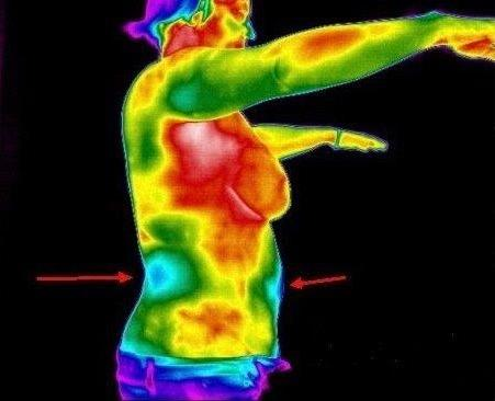 CT Thermography image 2