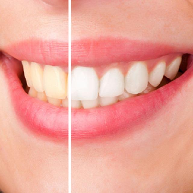 Как безопасно для зубов отбелить зубы