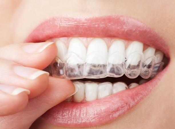 Goochland Dentistry, (Peter Murchie D.D.S). a div. of Central Virginia Dental Care image 4