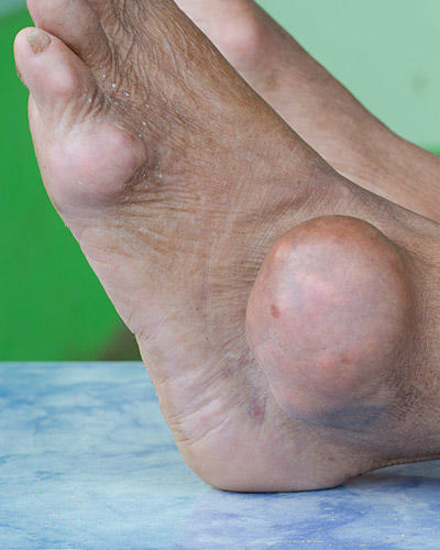 Innovative Foot & Ankle image 6