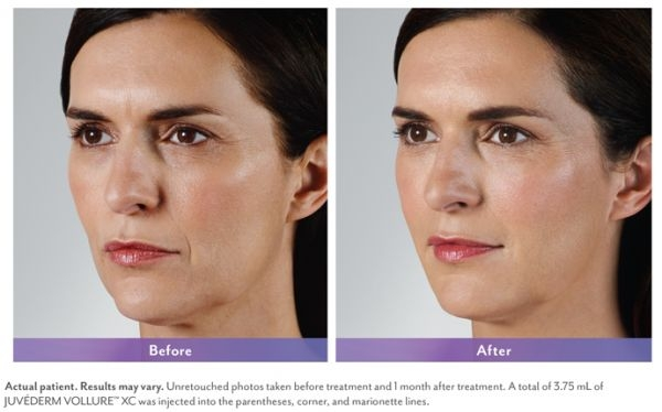 Skin Care and Laser Physicians of Beverly Hills image 18