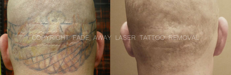 Benchmark Tattoo & Fade Away Laser Tattoo Removal image 9