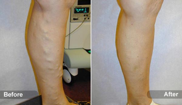 St Louis Laser Vein Center image 25