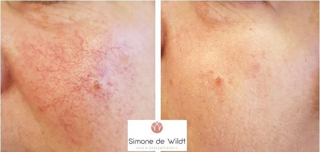 Simone de Wildt | Huid- & Oedeemtherapie Ewijk