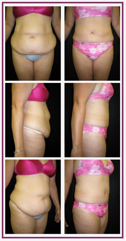 Nashua Plastic Surgery: George P. Chatson, M.D. image 2
