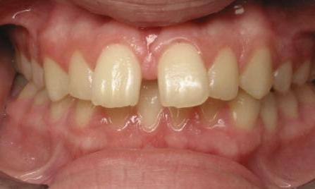 Dentistry 4 Kids,  Adults & Orthodontics Too image 4