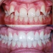 Fulks Orthodontics image 5