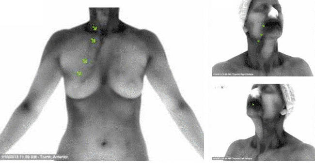 CT Thermography image 8