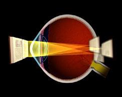 Eye Clinic Of Racine, Ltd image 2