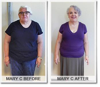 Weight loss doctors sherman tx