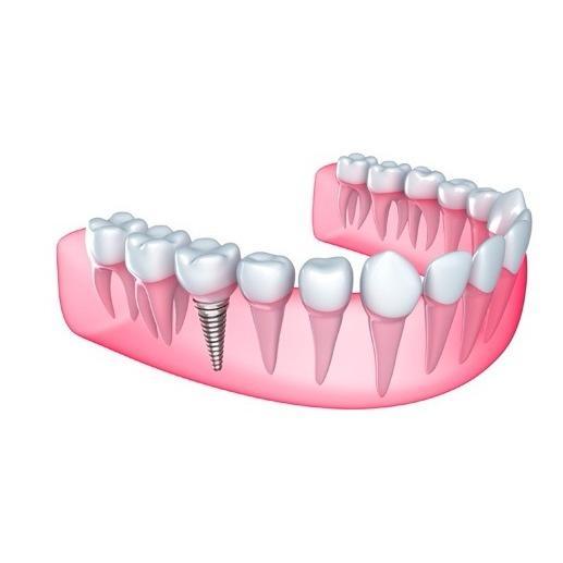 Dr Naser Sharifi Implant Dentistry