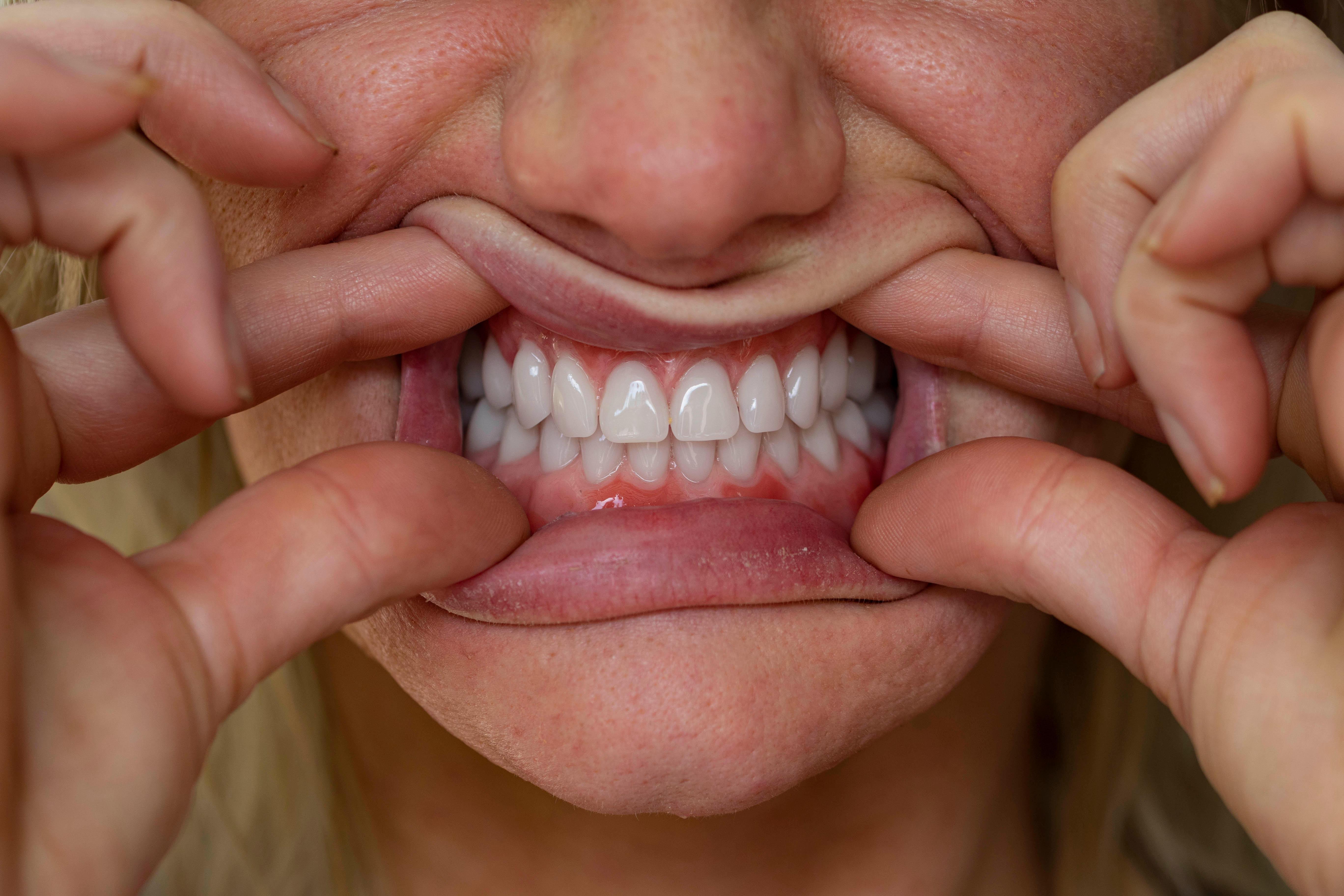 Dental Art work
