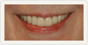 Darshan P. Patel, DDS, DPh, PLLC Esthetique Dental image 2