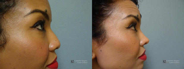 Cosmetic Surgery and Laser Center of El Paso image 7