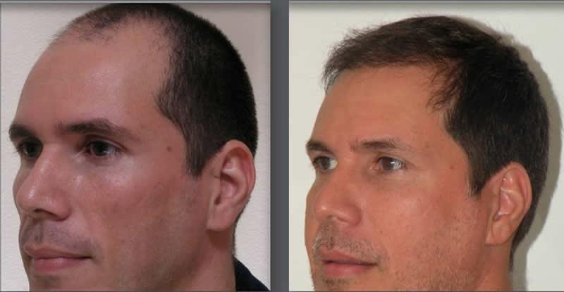Orlando Hair Clinic image 4