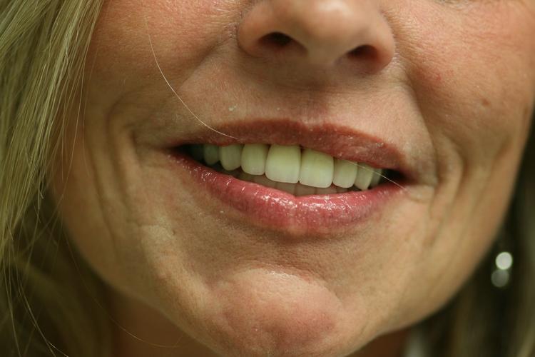 Murrieta Smiles Dentistry image 7